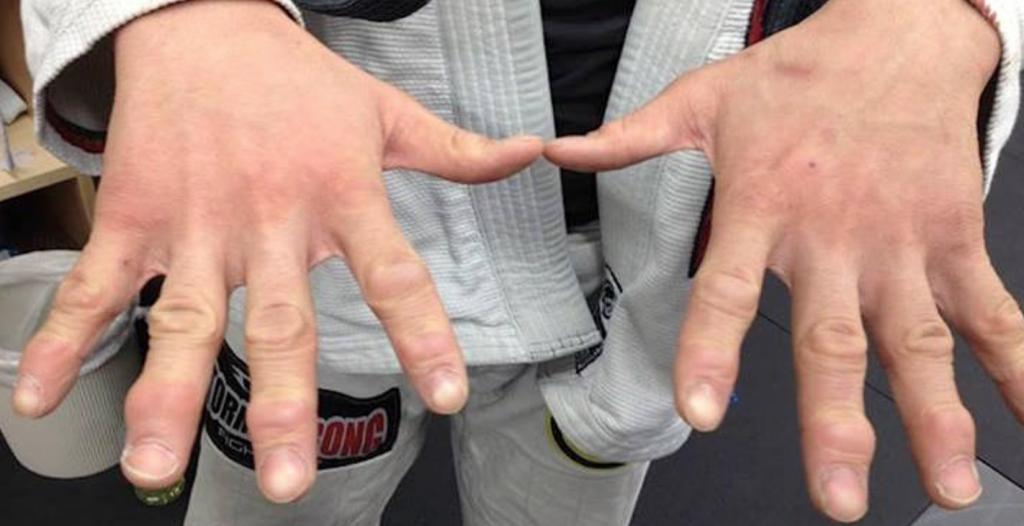 Jujitsu Fingers
