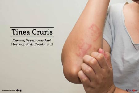 Tinea Cruris - Causes, Symptoms and Treatments